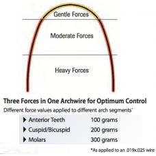 G4 NITI - PROGRESSIVE FORCE (PACK OF 10)